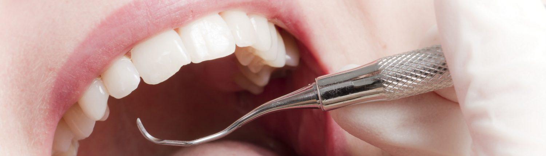 Effiziente Parodontitisbehandlung Andreas Hager, Zahnarzt Burbach