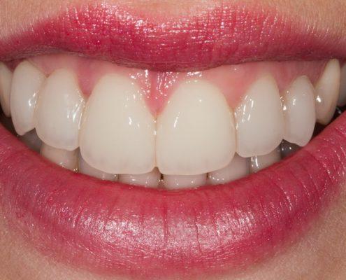 Gleichmäßige Zahnreihe mit Veneers Zahnarzt Hager, Burbach