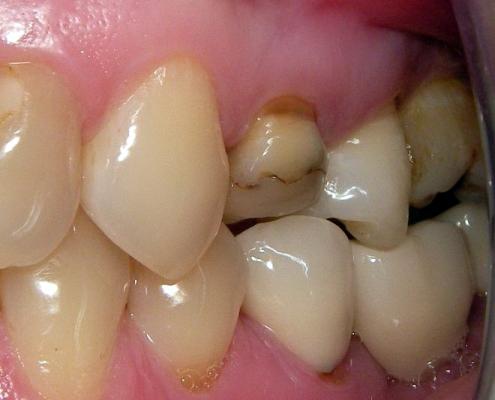 Seitenzahn mit defekter Füllung vor dem Einsatz einer CEREC-Krone, Zahnarzt Andreas Hager, Burbach