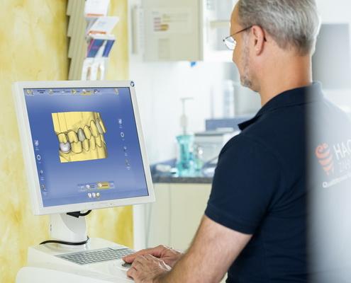 Füllungen mit dem CEREC-Verfahren, Zahnarztpraxis Andreas Hager, Burbach, Siegerland
