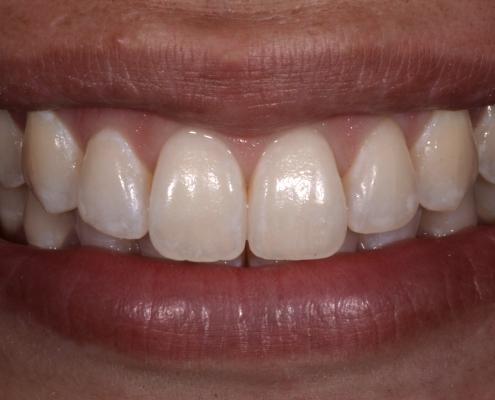 White spots nach der Behandlung mit ICON