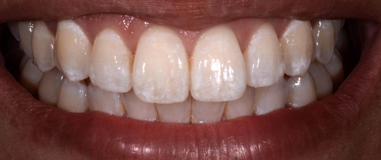 White spots vor der Behandlung mit ICON